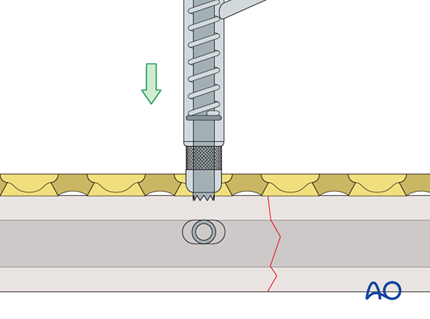 spring-loaded LC-DCP drill guide