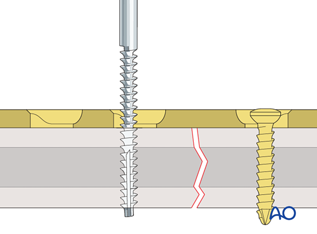 Tapping of screw holes