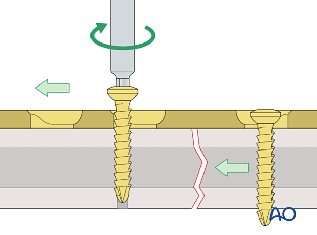 Compression of fracture