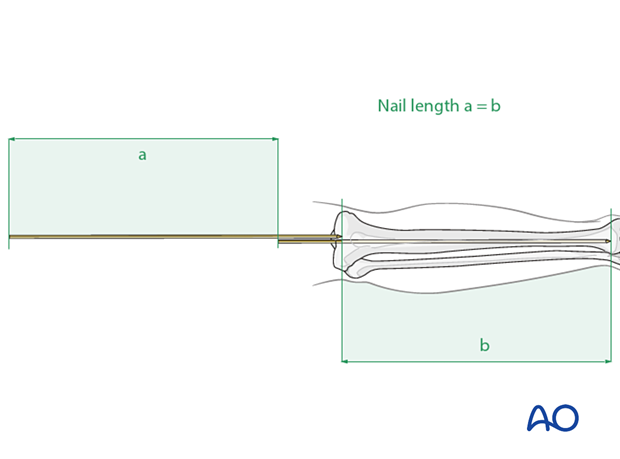 Determination of length using second guide wire