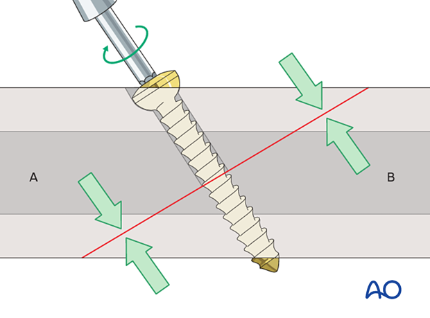 Lag screw compressing the fracture