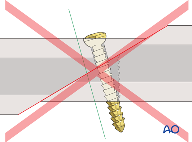 Screw inserted outside screw axis