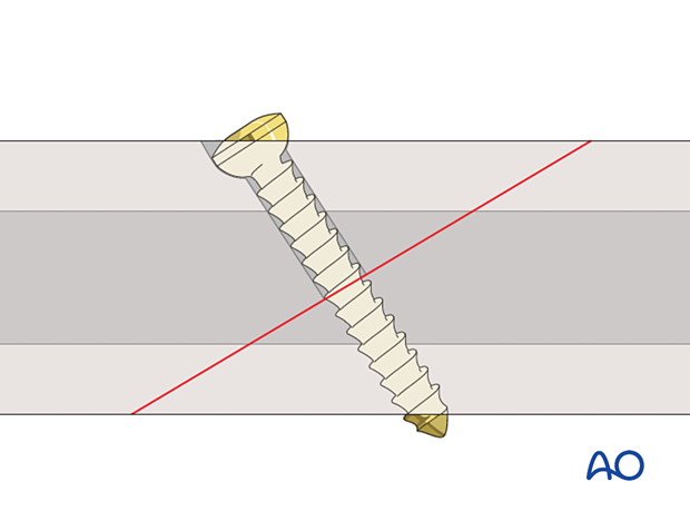 Insertion of non self tapping screw