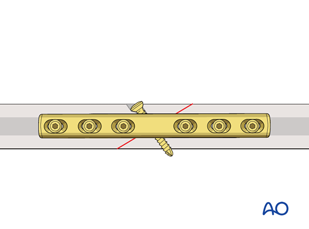 Lag screw fixation protected by a neutralization plate