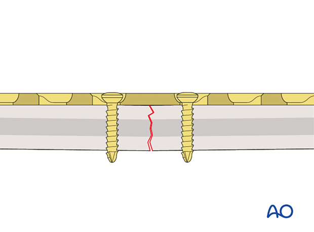 Plate applied with fracture gap of the far cortex