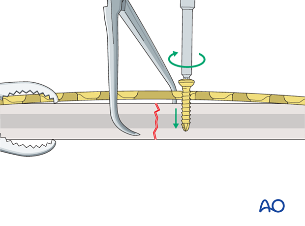 Insertion of first compression screw