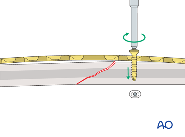 Insertion of first screw
