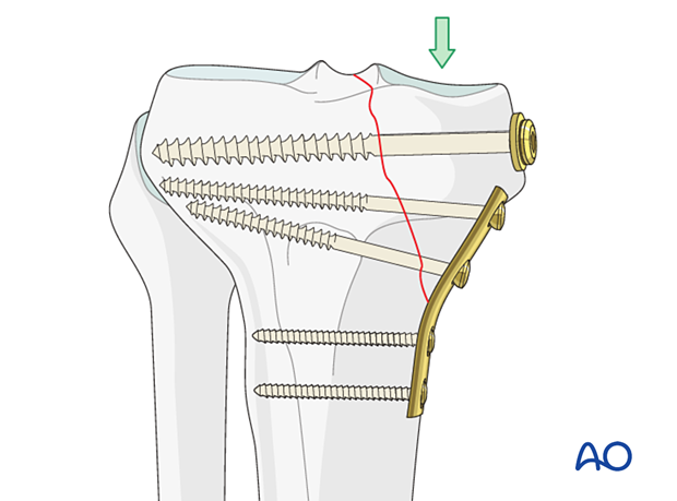 Buttress plate applied to proximal tibia fracture