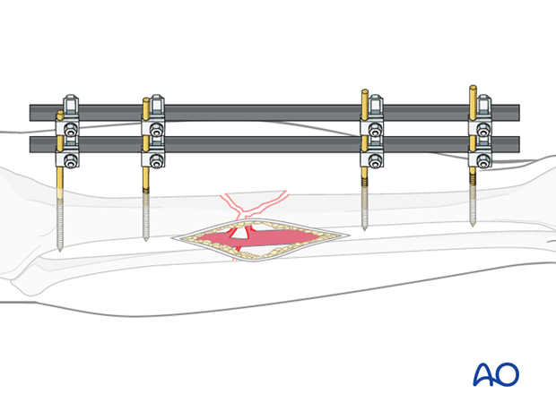 The diagram demonstrates an ideal external fixation placement.