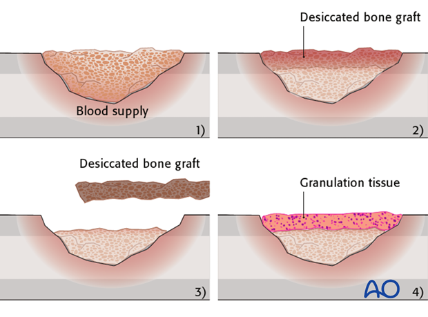Open cancellous bone grafting (Papineau technique), leaving the graft exposed beneath a nonadherent dressing, is a well-tried...