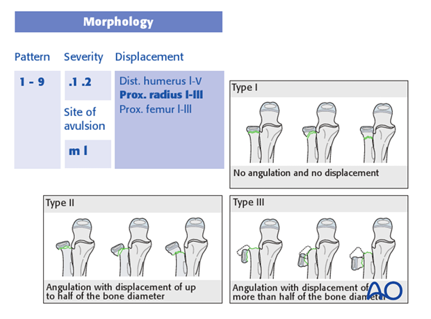 classification of childrens fractures