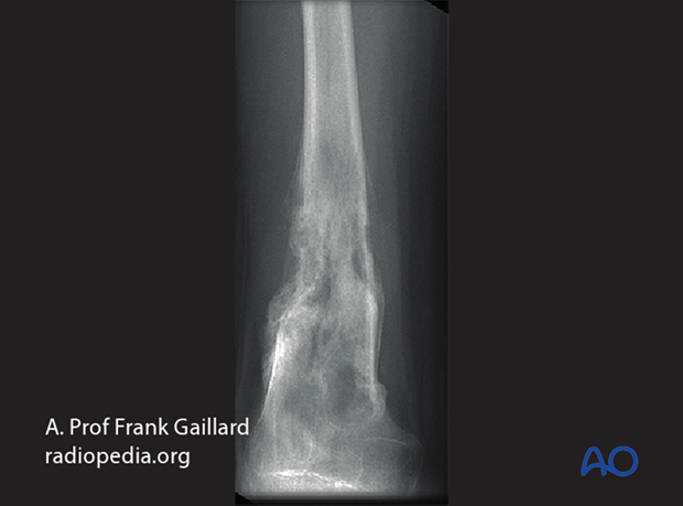 fractures in abnormal bone