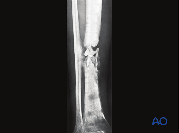 Chronic fracture site infection