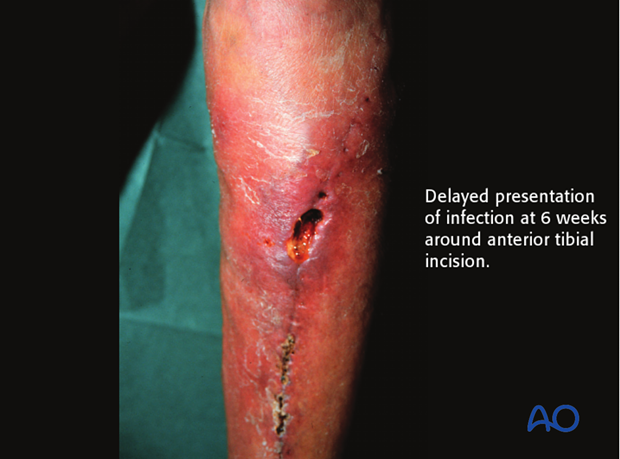 Later presentation of infection