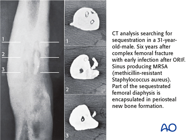 Computed tomography offers a cross-sectional guide for exploration and excision, particularly of bone fragments.