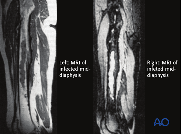 MRI offers improved imaging of soft-tissue abnormalities and can show greater anatomical detail than other imaging methods.