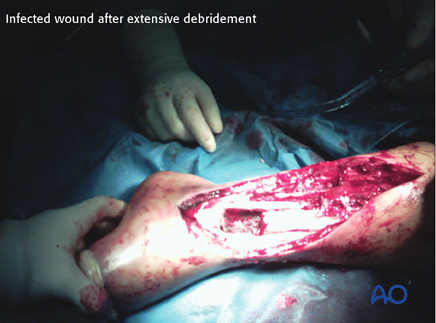 Infected wound after extensive débridement