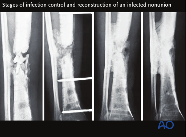 Eradication of infection, restoration of stability, and soft-tissue closure should be achieved before limb reconstruction.