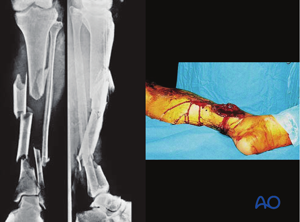 These illustrations show a severe open segmental tibial fracture, in which, short of primary amputation, IMN, using an ...
