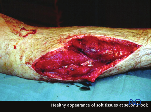 principles of management of open fractures