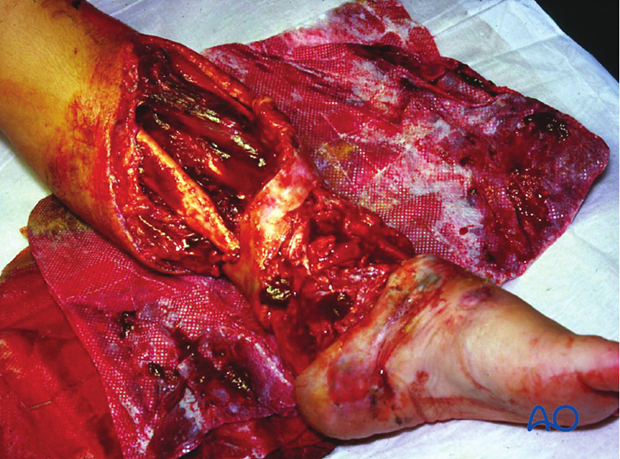 Open fractures need prompt diagnosis, appropriate intravenous antibiotics, meticulous injury...