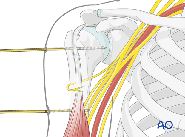 The tips of the pins in the humeral shaft should just perforate the far cortex.