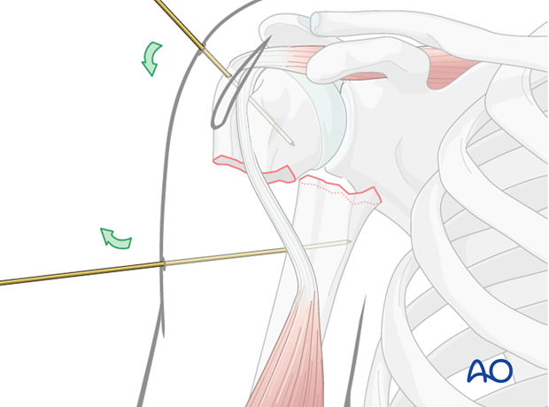Threaded pins or K-wires may be inserted into the proximal and distal fragments and used as joy sticks for fracture reduction.