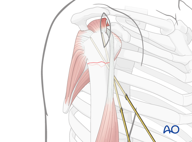 The reduction of the humeral head is temporarily secured using 2 to 3 K-wires.