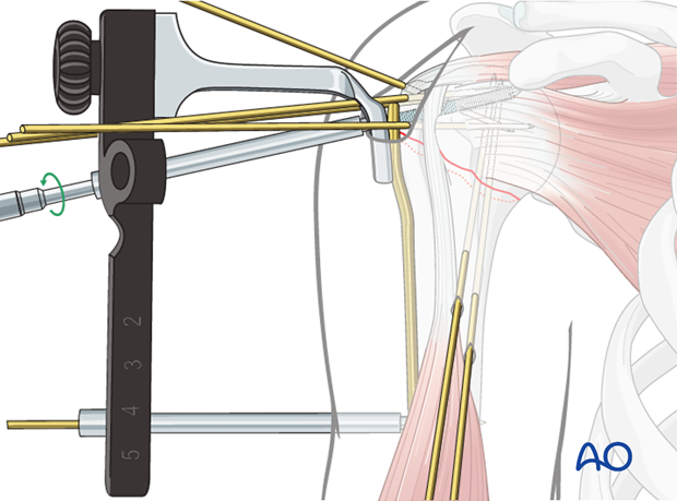 Insert a locking-head screw through the screw sleeve into the humeral head.