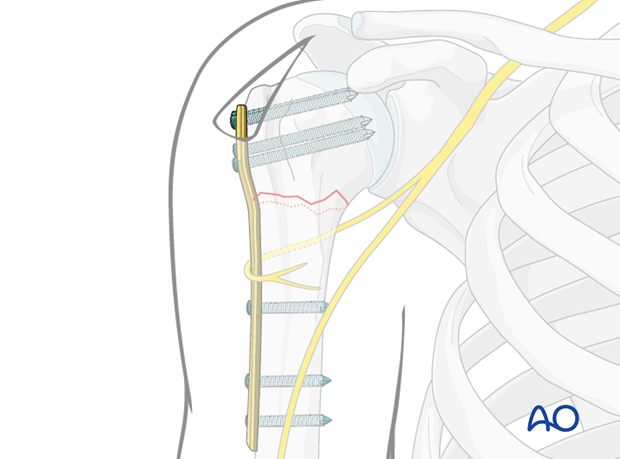 Insert two to three screws into the humeral shaft with aiming device and appropriate screw insertion sleeves.