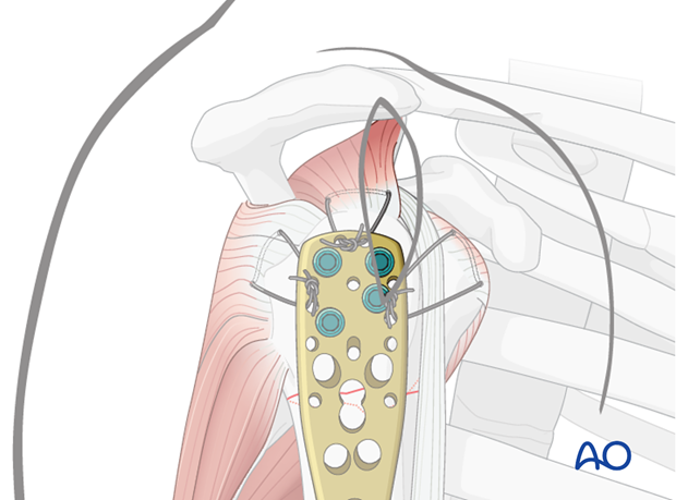 For osteoporotic patients, proximal screw fixation can be supplemented with sutures.