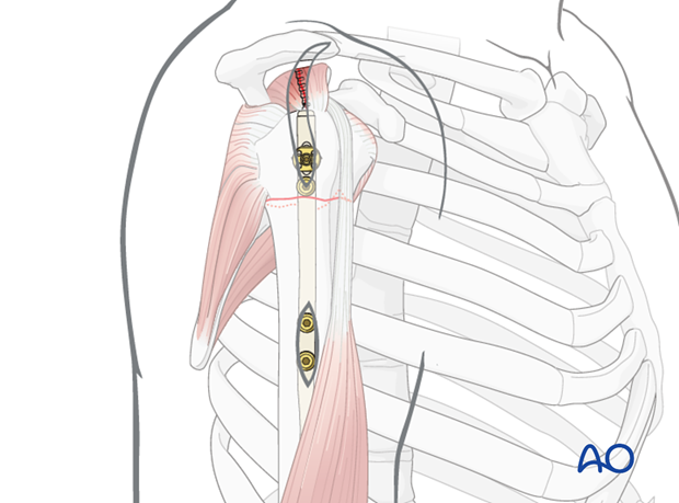extraarticular 2 part surgical neck no impaction