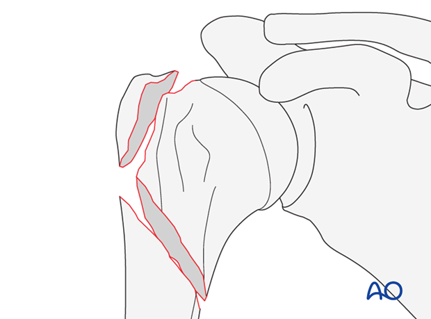 Fracture without rotational displacement of epiphyseal fragment