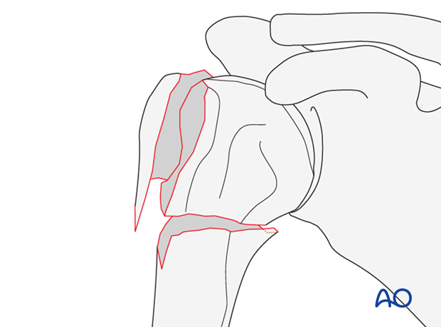Fracture with rotational displacement of epiphyseal fragment