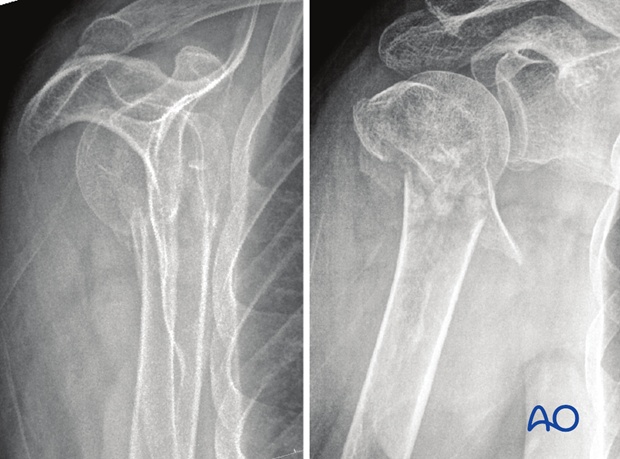 Multifragmentary metaphyseal fracture with involvement of one of the tuberosities