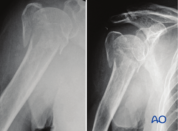 4-Part fracture with intact articular surface and valgus malalignment