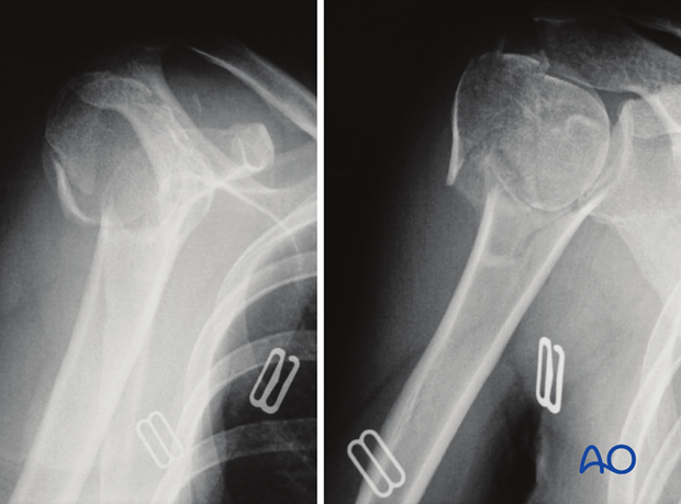 4-Part fracture with intact articular surface and varus malalignment
