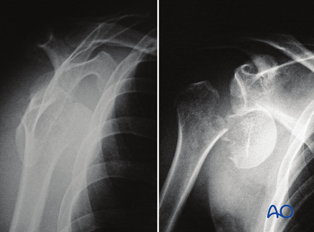 Isolated anatomical neck fracture with glenohumeral dislocation
