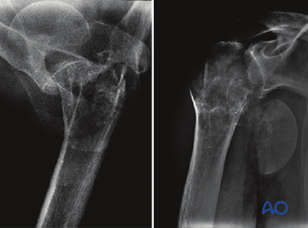 4-Part fracture, simple metaphyseal fracture with intact articular surface