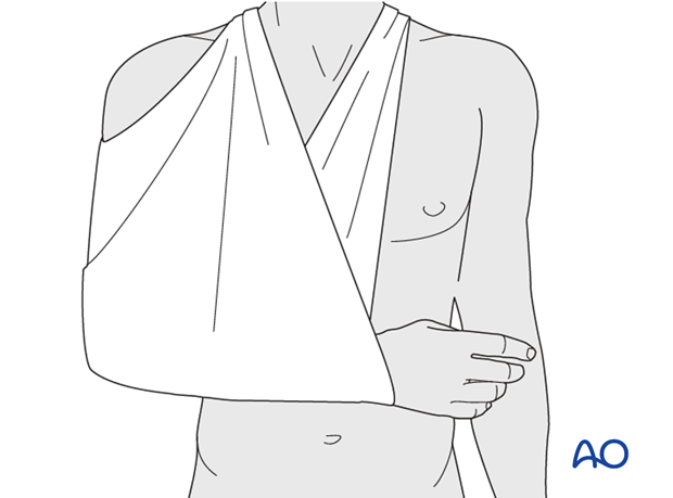 Slight to moderate displacement of proximal humerus fractures may be treated by external support alone. A broad arm sling is ...