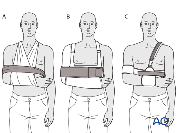 Sling and swath (A), shoulder immobilizer (B), Gilchrist bandage (C), and other such devices all provide essentially similar ...