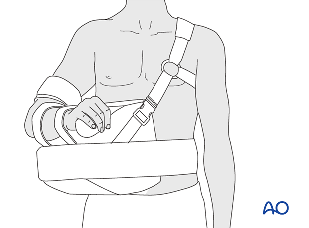 To relieve tension on the supraspinatus tendon and greater tuberosity, one may support the arm in abduction. This can be ...