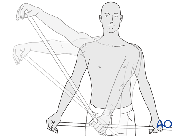 An exercise bar, which lets the patient use the uninjured left shoulder to passively move the affected right side.