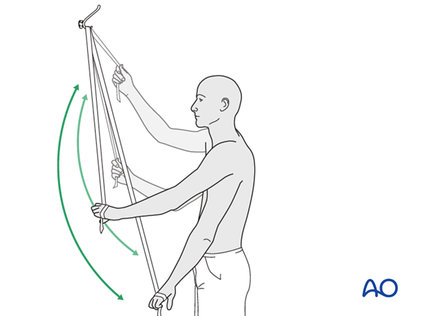 A rope and pulley assembly. With the pulley placed above the patient, the unaffected left arm can be used to provide full ...