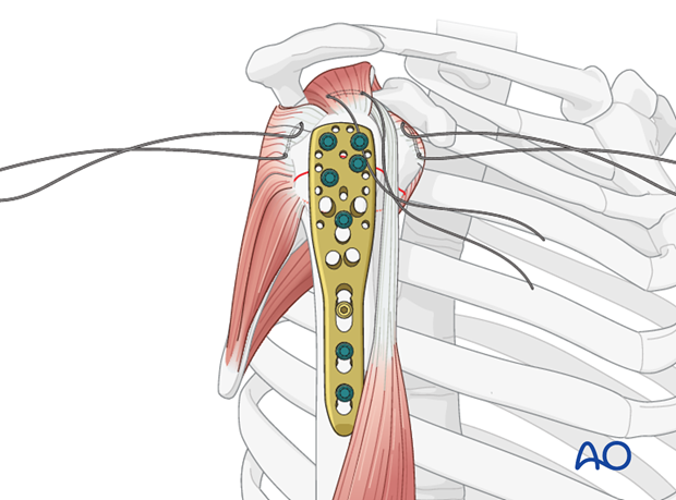 Consider adding tension band sutures through the rotator cuff tendon insertions and appropriate holes in the plate.