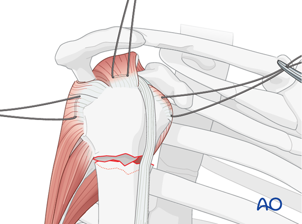 Insert holding sutures through the insertions of the subscapularis, supraspinatus, and infraspinatus tendon.