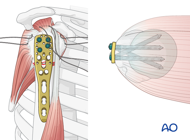Place a sufficient number of screws into the humeral head.