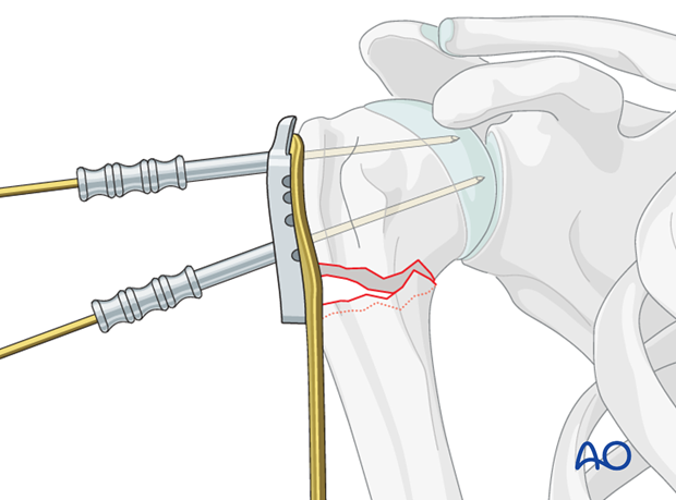 If the plate is properly positioned, the screws will be placed correctly in the humeral head.