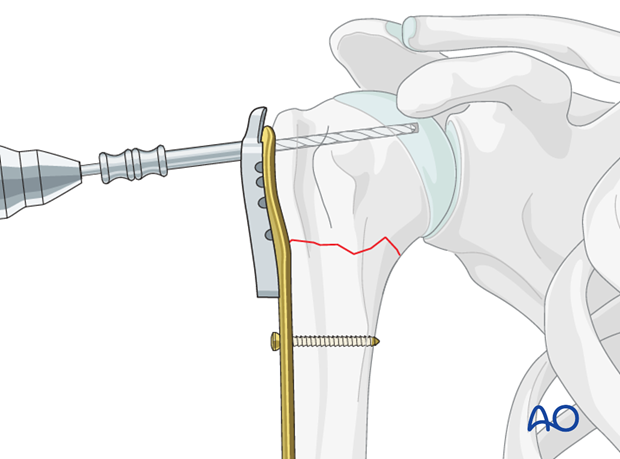 Use an appropriate sleeve to drill holes for the humeral head screws.