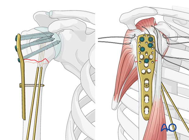 Place a sufficient number of screws (often 5) into the humeral head.